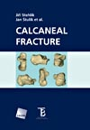 Calcaenal Fracture